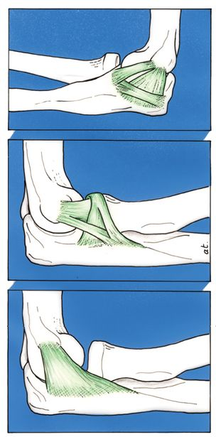 ligamenten des ellenboges